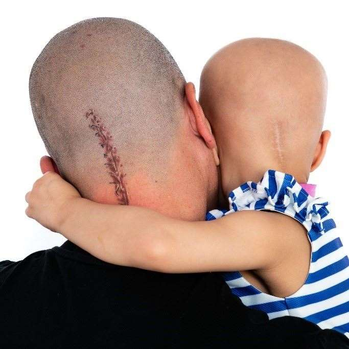Aaron Lambert shows the tattooed scar off, with his daughter Esme. (48106917)